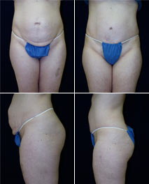 click to view Abdominoplasty (Tummy Tuck) patient spotlight