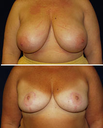 click to view cosmetic Mammoplasty (breast reduction) patient spotlight